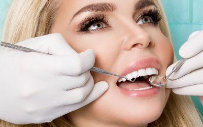 ¿Cuánto duran las carillas dentales y cuándo cambiarlas?