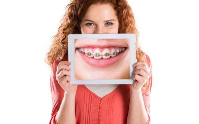 Ventajas y desventajas de la ortodoncia tradicional