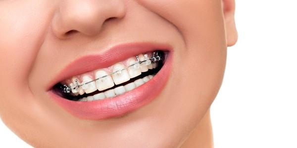Qué tipos de ortodoncia existen