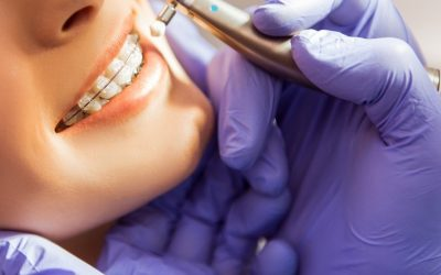 ¿Qué tipos de ortodoncia existen?