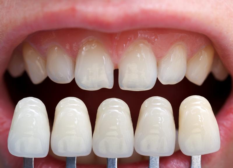 Cuánto duran las carillas dentales y cuándo cambiarlas