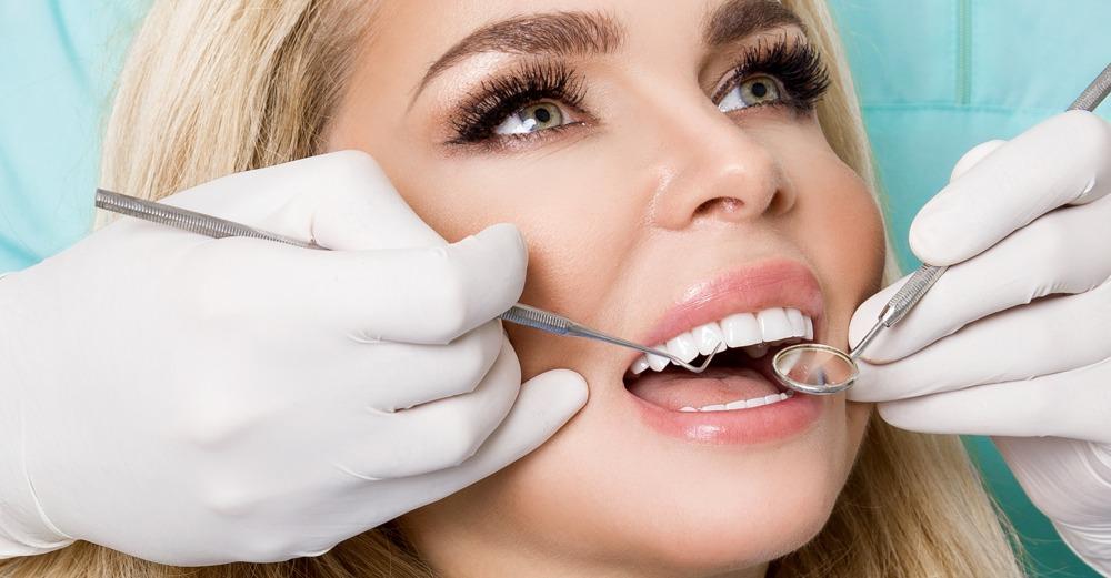 ¿Cuánto duran las carillas dentales?