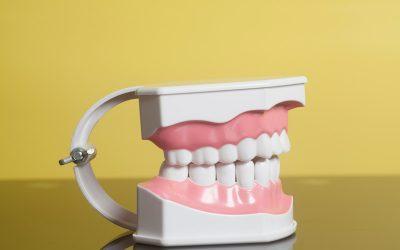 Las 7 enfermedades dentales más comunes que pueden estar afectandote