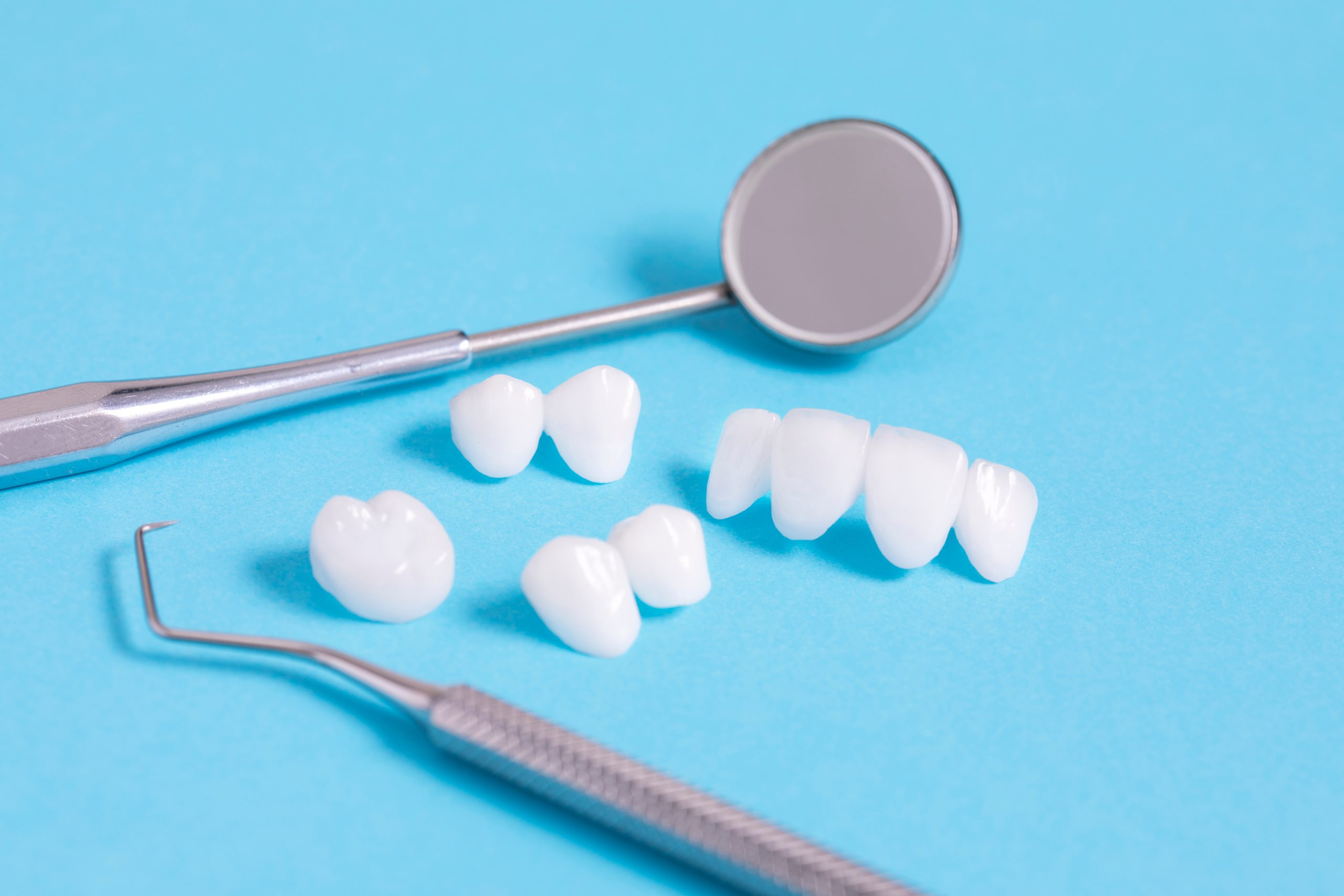 ¿Qué son las carillas dentales y para qué sirven?