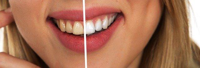 Fluorosis dental cómo evitar este tipo de manchas en los dientes.